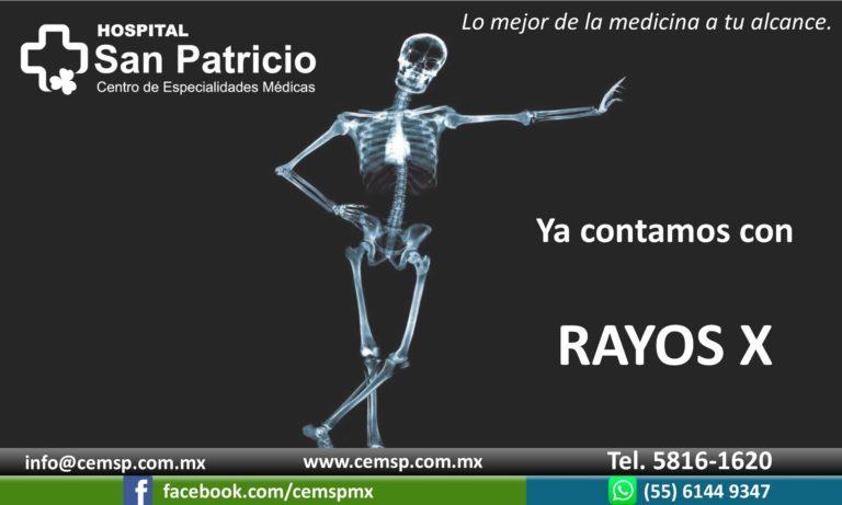 Rayos X1